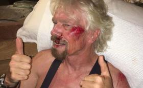 """Ричард Брансън: """"Животът ми мина пред очите"""". Британецът пострада тежко след велосипеден инцидент"""
